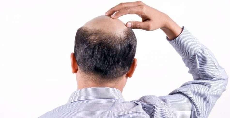 بهترین مرکز کاشت مو در یزد چه شرایطی باید داشته باشد؟